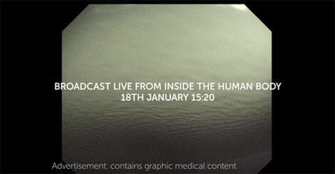 Still from Cancer Research UK's live TV advert showing operation