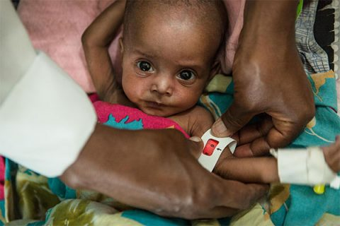 Six-month-old Dahir - photo: (c) Colin Crowley/Save the Children
